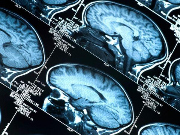 "Doctors may eventually be able to diagnose ""preclinical"" Alzheimer's in patients who have abnormal brain scans but who aren't yet showing behavioral symptoms of the disease."