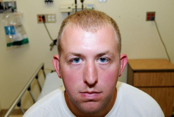 Photo of Darren Wilson during his medical examination after he fatally shot Michael Brown