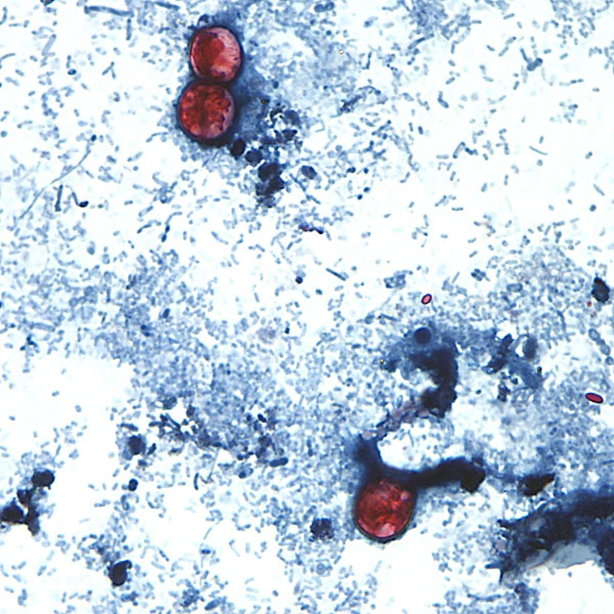 The intestinal parasite cyclospora gets into produce through contact with manure-contaminated water.